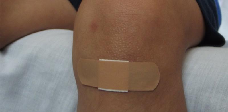 Kleinere Verletzungen richtig behandeln