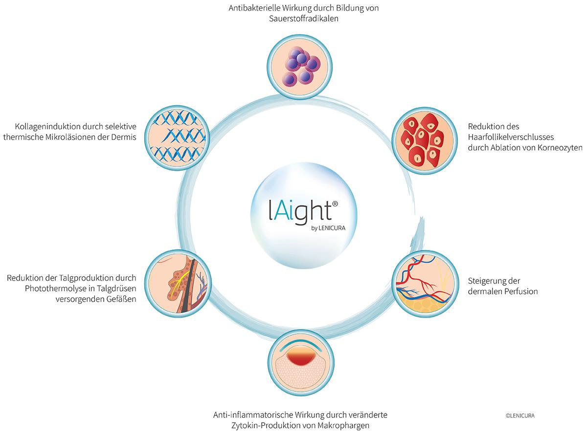 Wirkungsweise der lAight®-Therapie